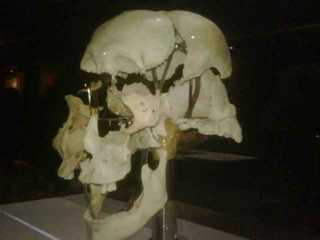 Amazing anatomy exhibition